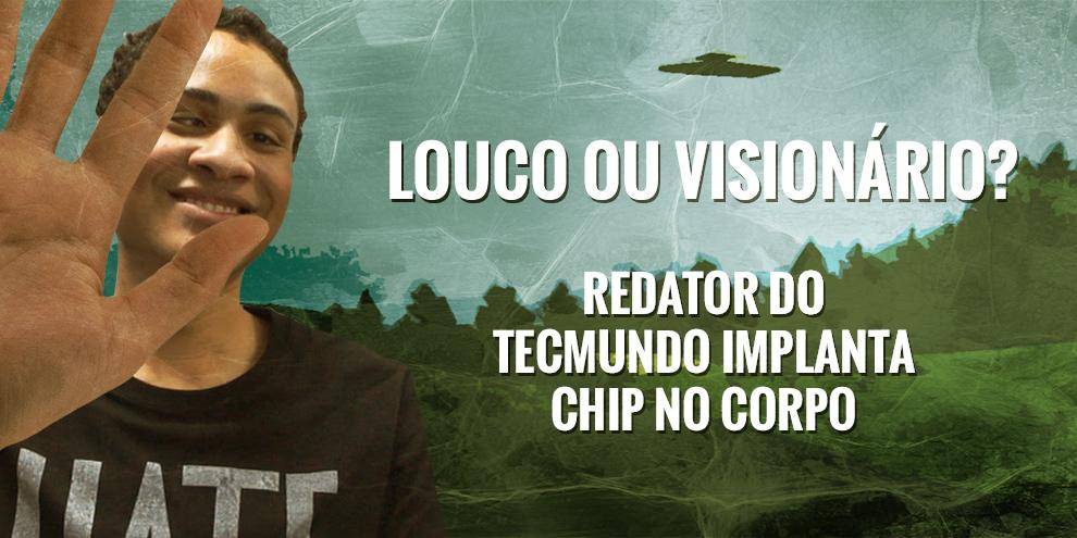 Imagem de Louco ou visionário? Redator do TecMundo implantou um chip no corpo [vídeo] no site TecMundo