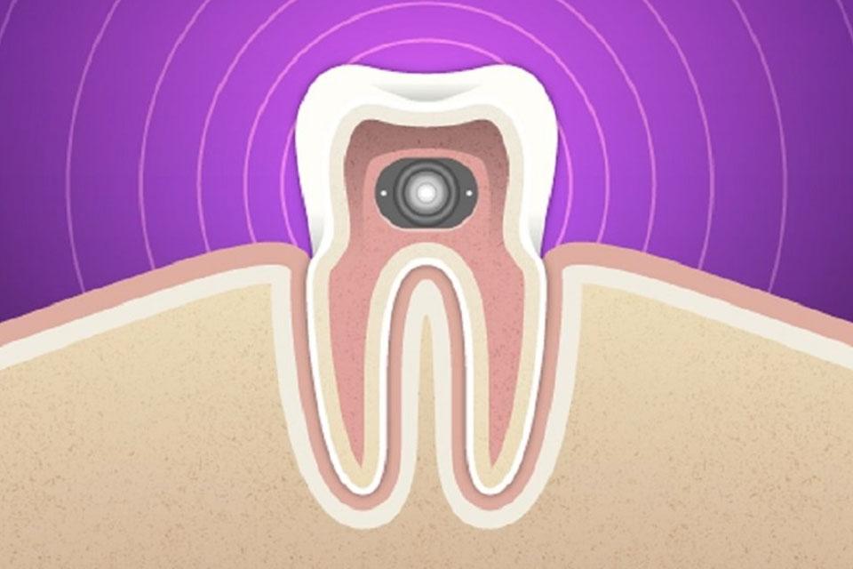 Imagem de Wearables: Google quer colocar um dispositivo no seu dente no tecmundo